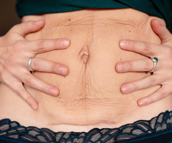 Important factors to look for before getting a tummy tuck